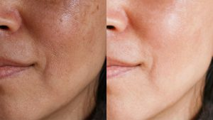Uneven Skin Tone And Get Clear Skin Treatment